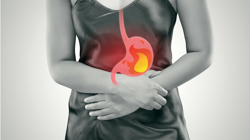 6 best remedies to relieve gastroesophageal reflux